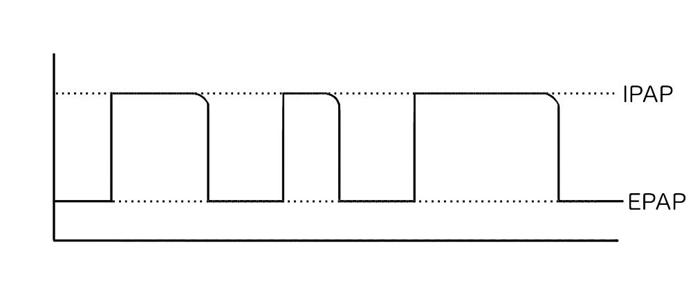 S/Tモードの波形はSモードに似ている