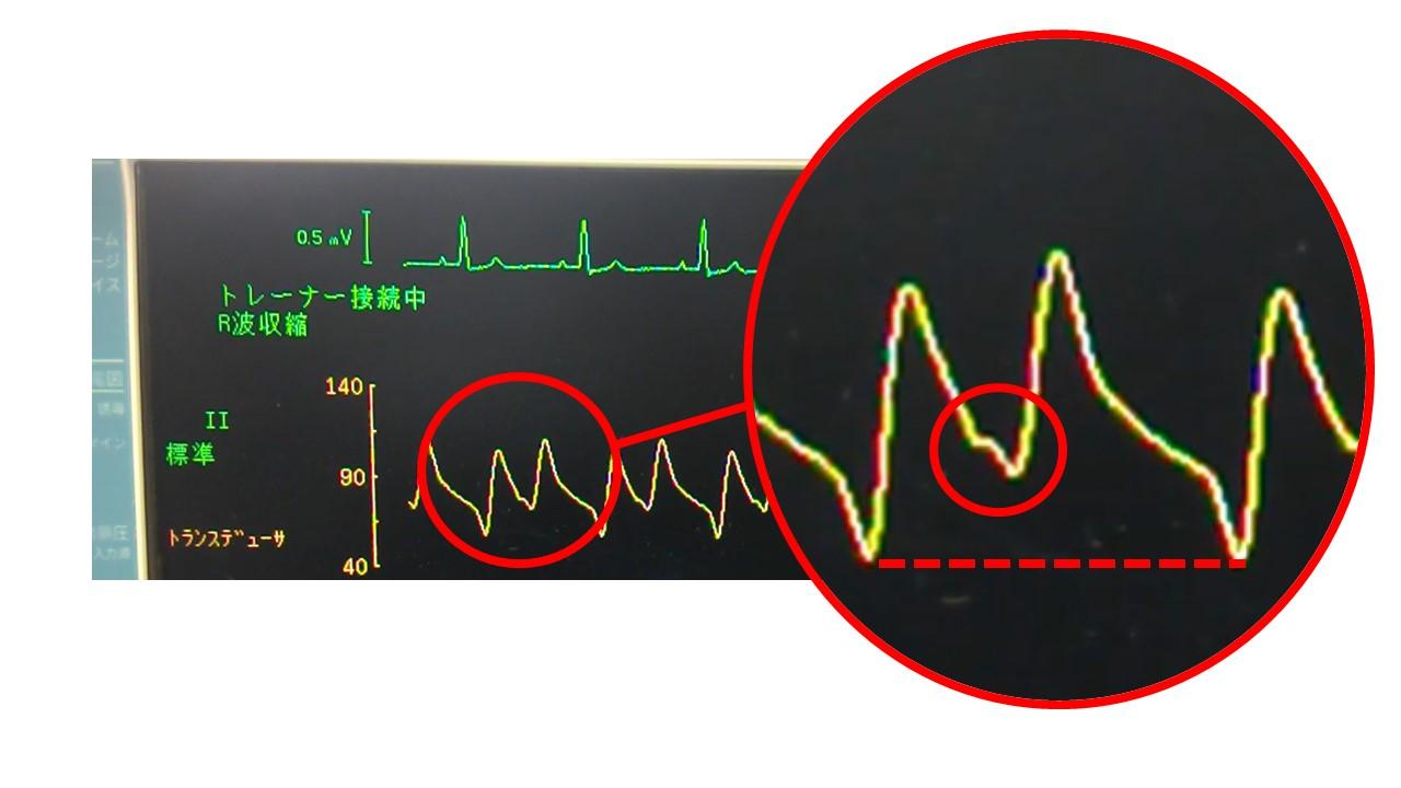 バルーン波形の解説